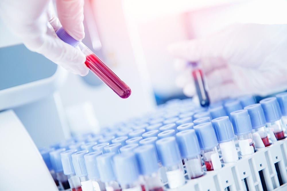 Oddanie krwi w czasie urlopu wypoczynkowego - czy należy się dzień wolny od pracy?